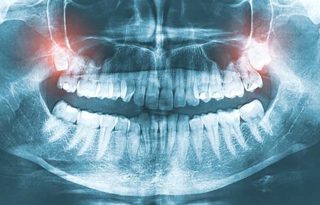 Wijsheid pijn tand mond tandarts kaak examen close-up tand pijn tandpijn wijsheid tand molar volwassen kliniek ziekte medicijn illustratie concept - stock afbeelding
