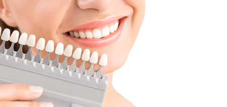 Beautiful smile and white teeth of a young woman. Matching the shades of the implants or the process of teeth whitening. Stock Photo