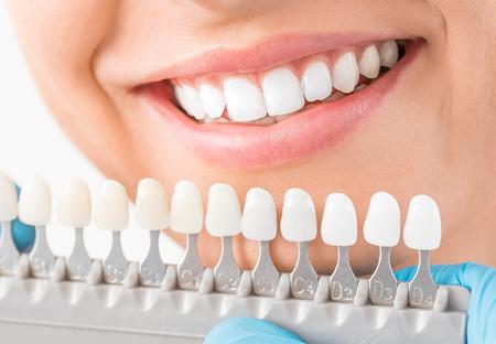 Beau sourire et dents blanches d'une jeune femme. Correspondant aux nuances des implants ou au processus de blanchiment des dents. Banque d'images - 96039459