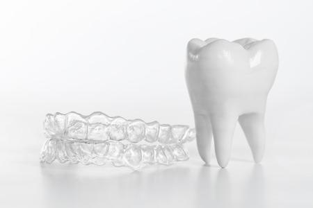 Brackets o alineador Inivisalign. Una forma de tener una hermosa sonrisa y dientes blancos.