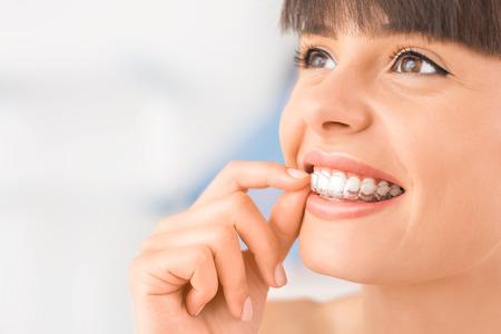 Mujer con entrenador de silicona de ortodoncia. Alineador de tirantes invisibles. Aparato de ortodoncia móvil para corrección dental. Foto de archivo