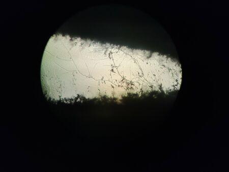 Aspergillus fumigatus, microscope view