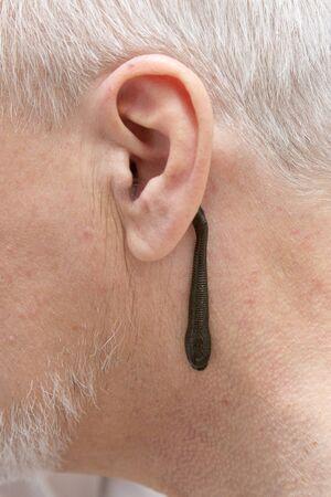leech therapy for senior man