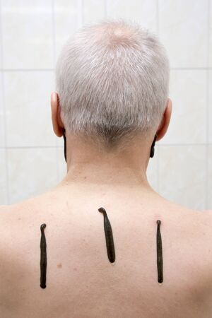 sanguijuela: terapia sanguijuela para hombre mayor