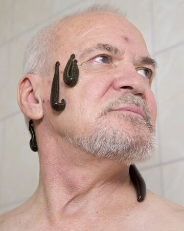 sanguisuga: terapia di sanguisuga per l'uomo anziano