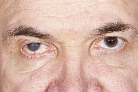 老人性白内障の目の検査の間にクローズ アップ 写真素材 - 39020388