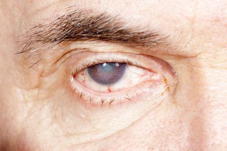 老人性白内障の目の検査の間にクローズ アップ
