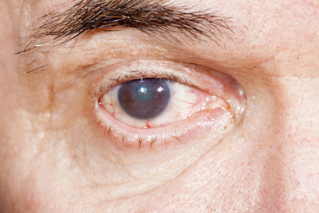 cataract: close up of the senile cataract during eye examination