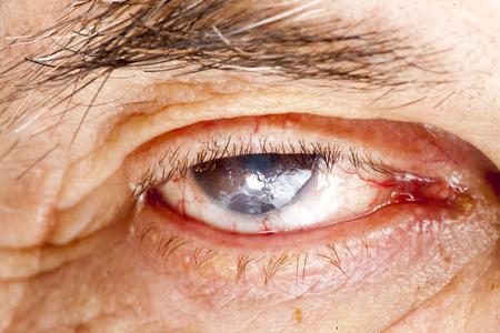 impair: close up of the senile cataract during eye examination