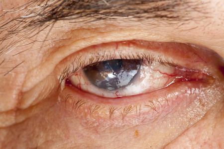 senile: close up of the senile cataract during eye examination