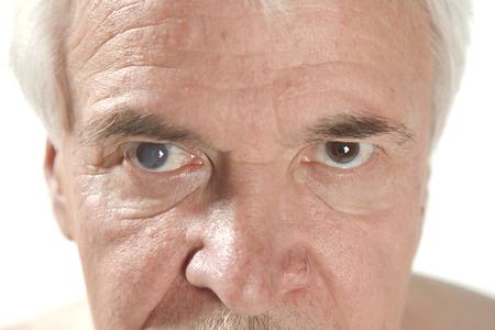 老人性白内障の目の検査の間にクローズ アップ 写真素材 - 43282367