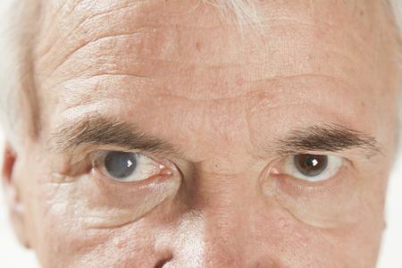 눈 검사 중에 노인성 백내장의 닫습니다 스톡 콘텐츠