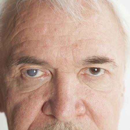 老人性白内障の目の検査の間にクローズ アップ 写真素材 - 43282392