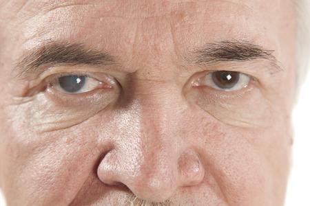 老人性白内障の目の検査の間にクローズ アップ 写真素材 - 43282399