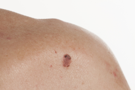 carcinoma: keratinizing squamous cell carcinoma of the skin on the back of an elderly man Stock Photo