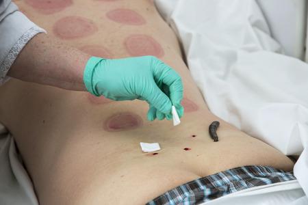 lumbar spine: Treatment with leeches degenerative disc disease of the lumbar spine. Stock Photo