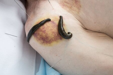 hematoma: Treatment shoulder joint  of bloodletting, medical banks, acupuncture and leeches.