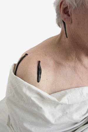 complementary therapies: Treatment with leeches at shoulder and neck area Stock Photo