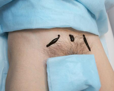 hemorragia: El tratamiento con sanguijuelas en la ingle por encima del hueso púbico