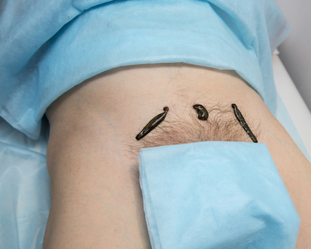 Treatment With Leeches At Groin Above The Pubic Bone Stock Photo ...