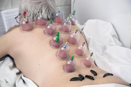 sanguijuela: M�ltiple Tratamiento de ventosas de vac�o m�dico y sanguijuela m�dico del cuerpo humano. Foto de archivo