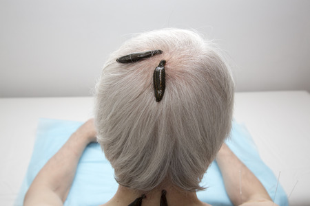 heal sickness: Treatment of headache, dizziness, and tinnitus with medical leeches.