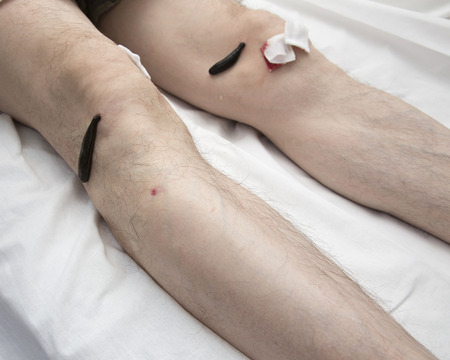 complementary therapies: Treatment with leeches knee. Leech at Tsu-san-li - point of one hundred diseases.