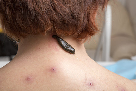 sanguijuela: Treatment with leeches the neck and the back of an adult woman Foto de archivo