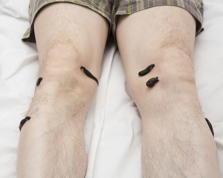 leech: Treatment with leeches knee. Leech at Tsu-san-li - point of one hundred diseases.