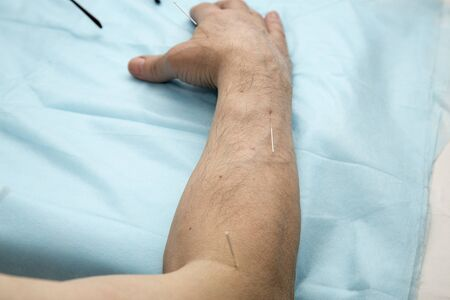 eastern medicine treatment: Treatment of patients with glenohumeral joint acupuncture