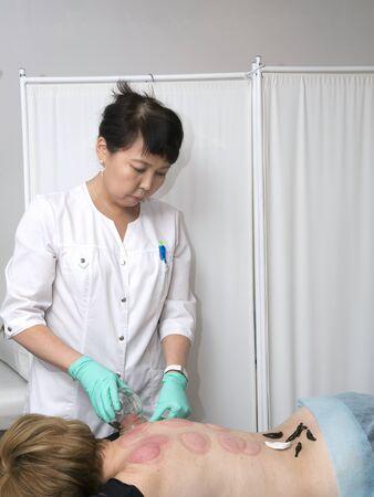 sanguijuela: El tratamiento con la enfermedad degenerativa del disco sanguijuelas de la columna vertebral lumbar.