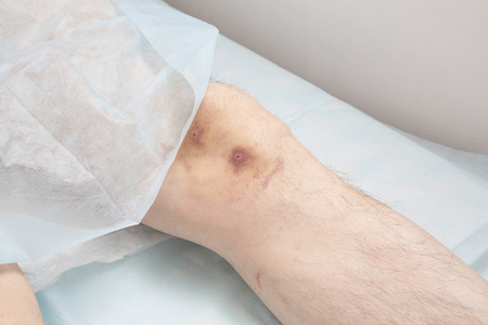 hematoma: Hematoma after removing leeches from the knee joint
