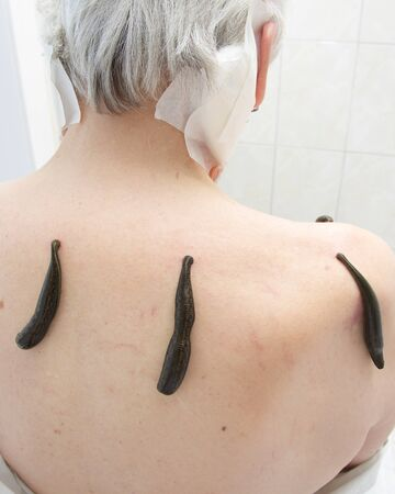 girdle: Treatment with leeches shoulder and neck area, back area in the middle of the right and left shoulder girdle