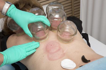 leech: Múltiple Tratamiento de ventosas de vacío médico y sanguijuela médico del cuerpo humano. Foto de archivo