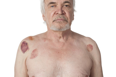 cupping therapy: Multiple vacuum cup of medical cupping therapy on  hirudo medicinalis human body. Hematoma after removing medical cans Stock Photo