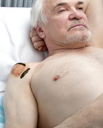 hemorragia: Tratamiento de la articulación del hombro del derramamiento de sangre, bancos de medicina, acupuntura y sanguijuelas.