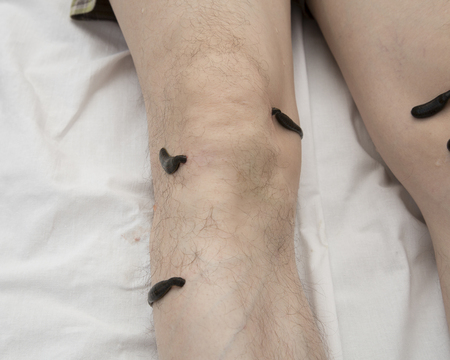 sanguijuela: Treatment with leeches knee. Leech at Tsu-san-li - point of one hundred diseases.