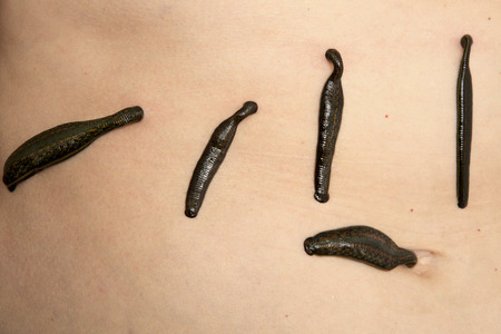complementary therapies: Leeches on his stomach in the liver area and the navel.