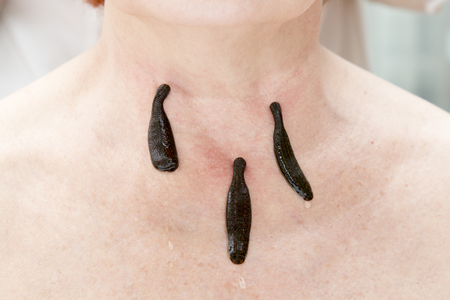 complementary therapies: Treatment with leeches the neck and the back of an adult woman Stock Photo