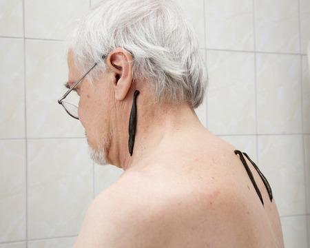 hemorragia: El tratamiento con sanguijuelas del hombro y el cuello, la espalda �rea en el centro de la derecha y la cintura escapular izquierda
