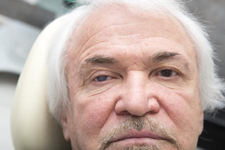 impair: Glaucoma and senile cataract in elderly men Stock Photo