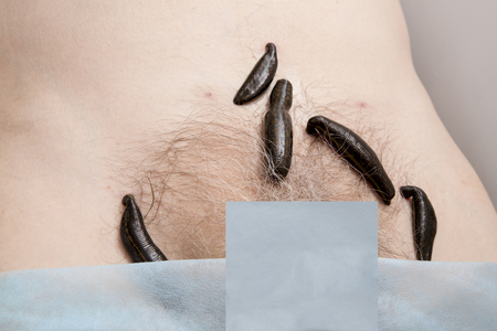 pubic: Treatment with leeches groin area in the pubic bone.