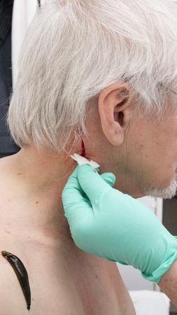 hemorragia: El tratamiento con sanguijuelas del hombro y el cuello, la espalda área en el centro de la derecha y la cintura escapular izquierda