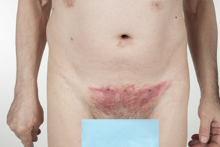 pubic: Hematoma after removing leeches over the pubic bone