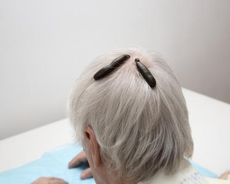 hemorragia: El tratamiento de dolor de cabeza, actividad, mareos, sanguijuelas médicos de tinnitus. Foto de archivo
