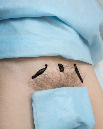 complementary therapies: Treatment with leeches groin above the pubic bone Stock Photo