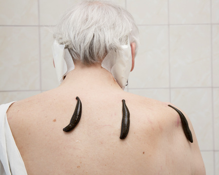 hemorragia: Treatment with leeches shoulder and neck area, back area in the middle of the right and left shoulder girdle