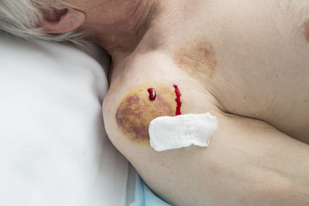 hematoma: Hematoma after removing medical cans