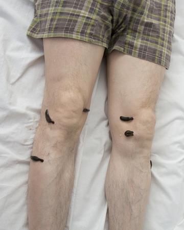 leech: El tratamiento con sanguijuelas rodilla. Leech en Tsu-san-li - punto de cien enfermedades.