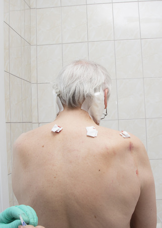 enzymes: Treatment with leeches shoulder and neck area, back area in the middle of the right and left shoulder girdle
